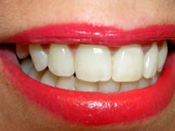 Triky pro bílé zuby