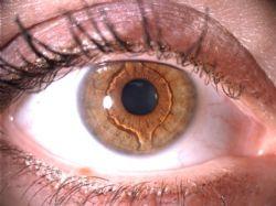 Zelené oči jsou téměř vzácnost, hnědé  má skoro každý